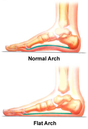 A comparison between a normal foot and a flat foot.